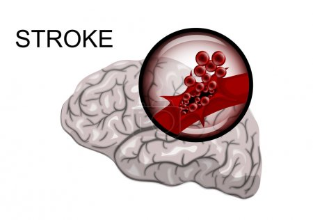 hemorrhagic stroke. insult. rupture of the vessel