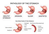 pathology of the stomach