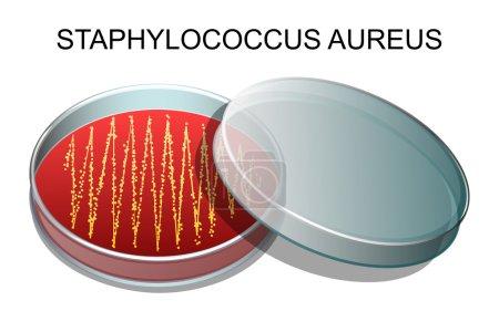 Illustration pour Illustration d'une culture de Staphylococcus aureus dans une boîte de Pétri - image libre de droit