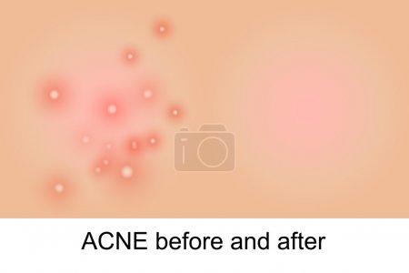 Illustration pour Illustration de peau propre et d'acné - image libre de droit