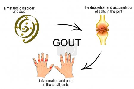 The mechanism of development of gout. pain in the ...