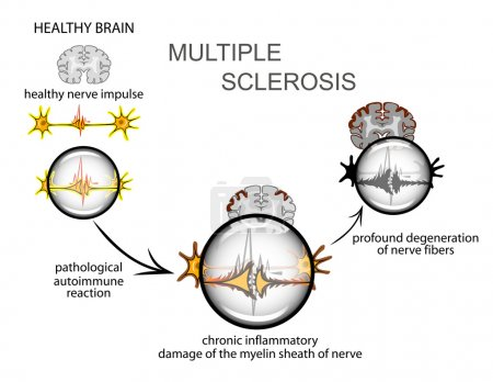 multiple sclerosis. Neurology