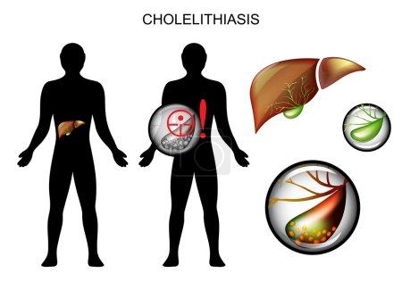stones in the gallbladder
