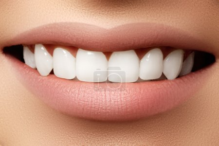 Beautiful wide smile of young fresh woman with great healthy white teeth. Closeup of woman smiling with prefect white teeth on white