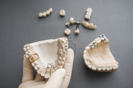 Photo for Dentures and plaster jaw in dentist hand flat lay. Top view on different dentures and dental crowns and plaster jaws, one in dentist hand. - Royalty Free Image