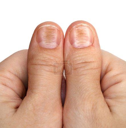 Nail disease, beriberi