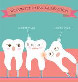 Wisdom Teeth Partial Eruption Impaction