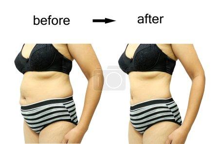 Photo pour Le corps de la femme avant et après un régime - image libre de droit