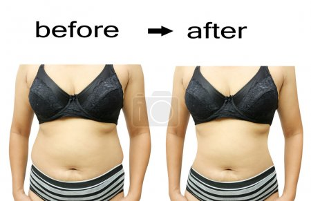 Photo for Woman's body before and after a diet - Royalty Free Image