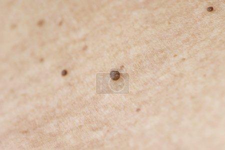 Warts - Skin Tag Disease