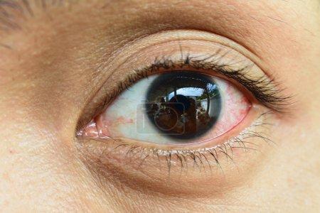Photo pour Close Up d'oeil irrité rouge sang. - image libre de droit