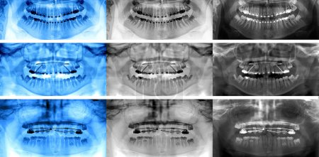 dental scan , types of fixed appliances