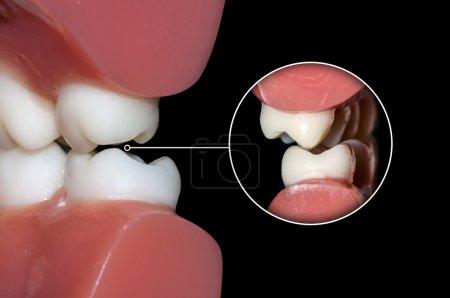 dental occlusion molars teeth close up