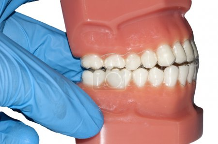 Dental cast with invisible orthodontic removable aligners