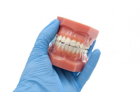 dentist show orthodontic results of dental smiling treatment