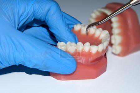 dentist hand show dental teeth mould jaw