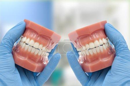 Dentist show orthodontic treatment results esthetics smiling