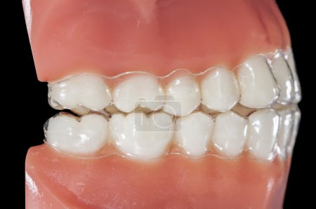 invisible orthodontic removable aligners for treatments bruxism