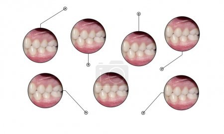 dental occlusion medical infopraphic elements shapes