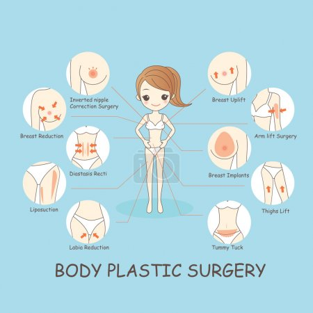 Illustration for Cartoon woamn body plastic surgery, great for healthy concept - Royalty Free Image