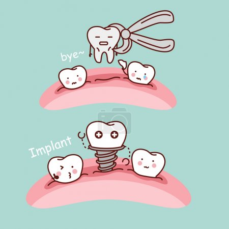 cartoon tooth extract and implant