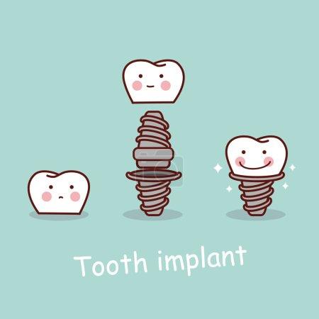 cartoon tooth dental implantation concept