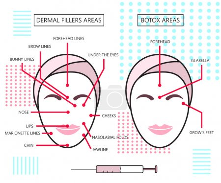 Infograthic poster about dermal fillers and botox ares. Injections. Cosmetology. Beauty. Vector Illustration.