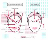 Infograthic poster about dermal fillers and botox ares Injections Cosmetology Beauty Vector Illustration