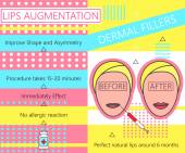 Infographic about Lips Augmentation Dermal Fillers Cosmetology Beauty Vector illustration