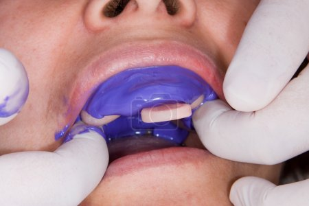 manufacturing process of dental prostheses