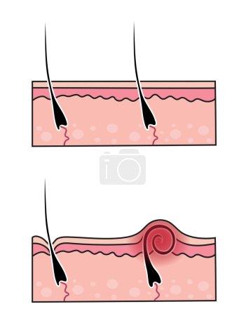 set burrowing hair