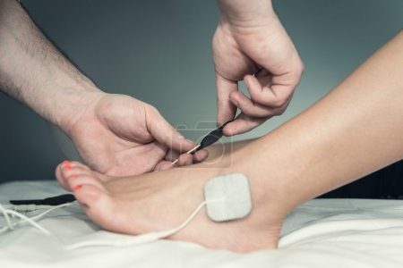 Placing TENS electrodes on foot