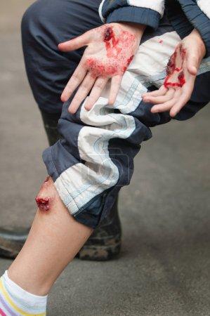 Photo pour Simulation réaliste de blessures graves aux jambes et aux mains - image libre de droit