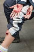 Simulované vážná zranění