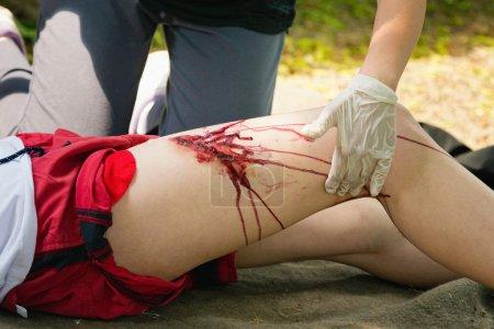 Foto de Persona con lesiones graves de la pierna, que recibe el tratamiento de primeros auxilios. Ejercicio médico, sangre artificial - Imagen libre de derechos