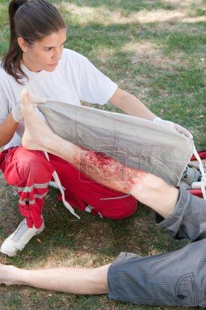 Paramedic treating a victim with third degree burns