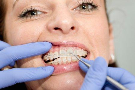Orthodontist tightening braces to female patient
