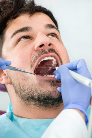 Dental plaque removal at dentist office