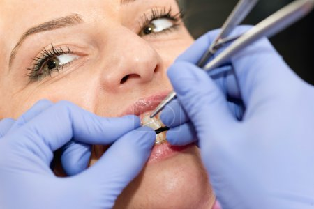 dentist tightening braces  on female patient