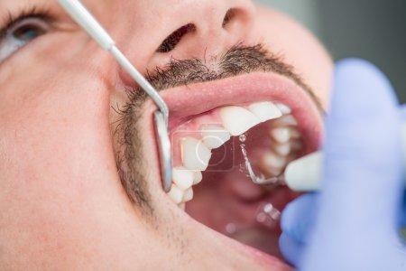 Photo pour Patient masculin obtenant la plaque Enlèvement au cabinet du dentiste - image libre de droit