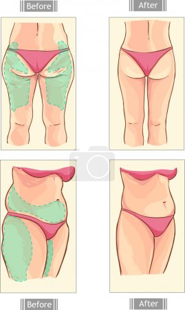 vector illustration of a liposuction