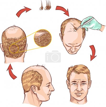 Vector illustration of a hair transplantation...