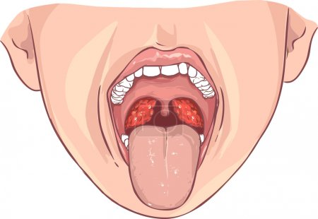 vector illustration of a Tonsillitis bacterial