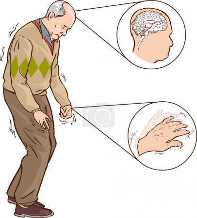 Illustration for Old man with Parkinson symptoms difficult walking - Royalty Free Image