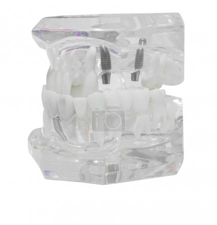 Dental Model of Teeth Isolated on white background clipping path