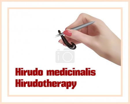 Illustration for Hirudo medicinalis. Hirudotherapy. Treatment with leeches. - Royalty Free Image