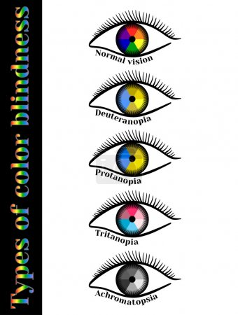 Types of color blindness.