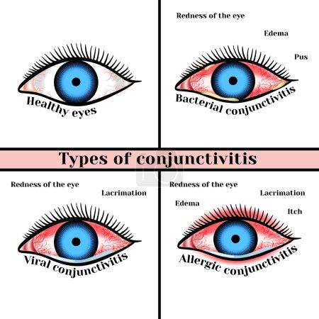 Conjunctivitis types. Inflammatory diseases of eye...