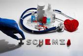 Diagnóza - ischemie. Lékařská koncepce s tablety, injekce, stetoskop, kardiogram a stříkačky