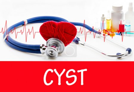 The diagnosis of cyst